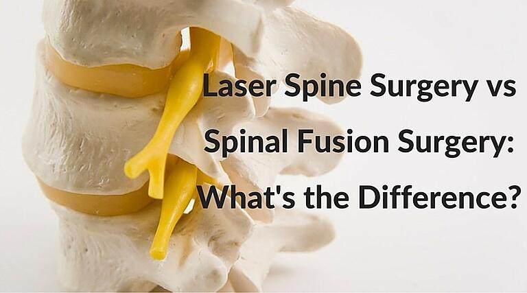 Laser Spine Surgery Vs Spinal Fusion Surgery What S The