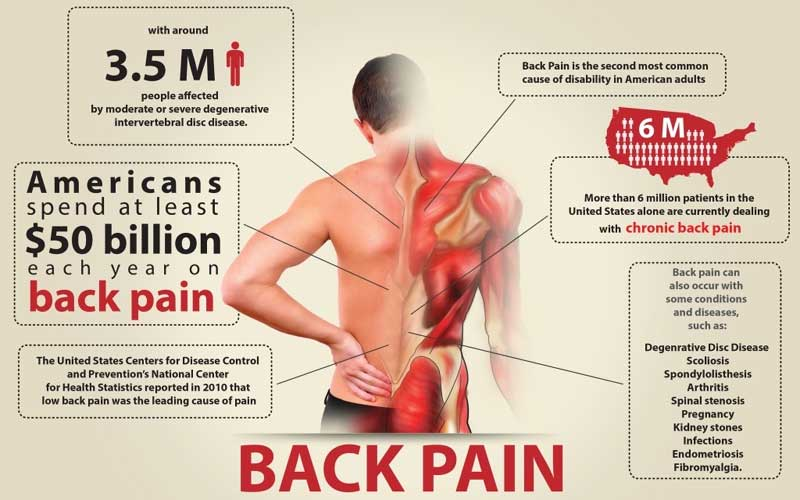 back-pain-info.jpg